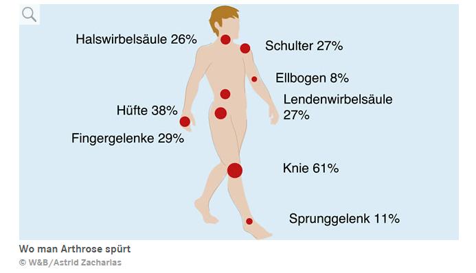 Arthrose Infografik